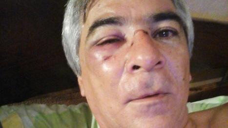 """Luis Benedek fue agredido anoche por un hincha, en la semifinal de básquet entre Talleres y Tucumán BB. """"Pensé no volver a dirigir"""", dijo."""